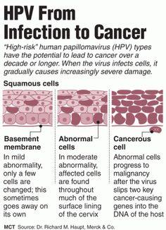 human papillomavirus infection abnormal cells)