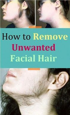 remove unwanted hair permanently/remove unwanted hair/remove unwanted hair with vaseline/remove unwanted hair naturally/remove unwanted hair permanently bikinis/Remove Unwanted Hair/ #BestPermanentHairRemoval #UnwantedHairRemovalOnEars #BestUnwantedHairRemoval #BodyHairRemovalHomeRemedies #HairRemovalMachine Permanent Facial Hair Removal, Chin Hair Removal, Upper Lip Hair Removal, Underarm Hair Removal, Electrolysis Hair Removal, Remove Unwanted Facial Hair, Hair Removal Diy, Hair Removal Methods, Unwanted Hair