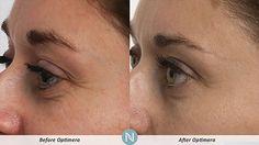 Todo sea por la belleza! Prueba Nerium-Optimera y rejuvenece 10 años http://beautyskin1.nerium.com