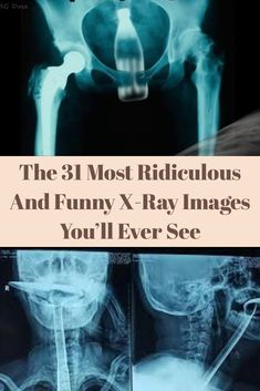 After all, every harrowing ER trip involving bizarre objects that find their way into the body is documented in X-rays. And naturally, some of those images are pretty freaky Makeup Looks Tutorial, Girl Facts, Entertainment Video, Alternative Movie Posters, Group Games, Funny Vines, Avatar The Last Airbender, Show Photos, Awkward Moments