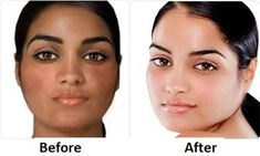 skin whitening injections islamabad