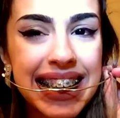 Orthodontic headgear fetish