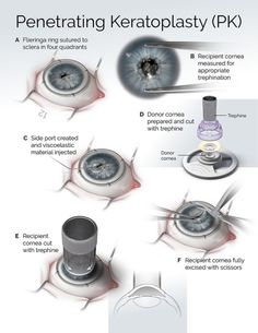 Penetrating keratoplasty or corneal transplant surgery Adobe Photoshop CC and Cinema Prk Eye Surgery, Eye Cataract, Diseases Of The Eye, Eye Anatomy, Eye Facts, Care Hospital, Medical Anatomy, Eye Doctor, Eyes On The Prize