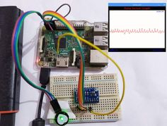 IoT Based Heartbeat Monitoring System Project using Raspberry Pi Iot Projects, Serial Port, Circuit Diagram, Light Sensor, In A Heartbeat, Arduino, Remote, Raspberry, Heart Rate