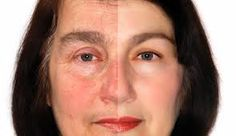Rosacea is flushed or redness of the skin.That's why the doctors invented Soothe. It will give you a luminous complexion every day...http://brendafranklin.myrandf.com