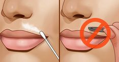 Do not buy with tweezers and hair removal! The mustache zone for women . Upper Lip Hair, Facial Care, Hair Removal, Septum Ring, Beauty Hacks, How To Remove, Hair Beauty, Skin Care, Cosmetics