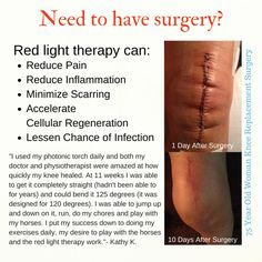 Red Light therapy applied to knee replacement surgical scar - Before & After Knee Doctor, Knee Replacement Surgery, Red Light Therapy, Knee Surgery, Body Sculpting, How To Eat Less, Loving Your Body, Reduce Inflammation, Diy Skin Care