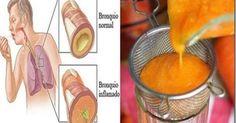 Antiguo remedio para la tos, las flemas, la gripe y la depuración de pulmones