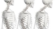 What Causes An Exaggerated Thoracic Spine Kyphosis?