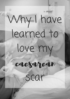 A caesarean birth was something which terrified me, but it was my reality. Not once but twice did my labour escalate into emergency caesarean section. They both took me time to get over and the thought of bearing the caesarean scar was difficult for a time. Now however, I've learned how to love my caesarean scar and although I never wanted the caesarean scar, I'd do it all again in a heartbeat.
