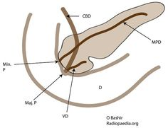 Pancreas divisum (PD) represents a variation in pancreatic ductal anatomy that can cause symptoms. It is most common variation of pancreatic duct formation and may be present in ~4-10 % of the general population 3-4,6. It's MRCP prevalence is at around 9% with autospy prevalence going up to 14%. http://radiopaedia.org/articles/pancreas-divisum