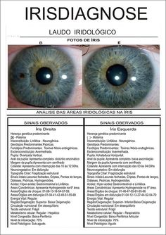 Blog de cursoiridologia : IRIDOLOGIA - CURSO DE IRIDOLOGIA A DISTÂNCIA, MODELO DO LAUDO IRIDOLÓGICO - IRISDIAGNOSE PROFISSIONAL 02