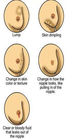 apostasatoasttoallthenurses:    Possible warning signs of breast cancer