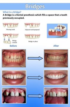 Dental care in bangalore with best dental treatment Visit:http://confidentdentalcare.in/