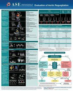 Cardiac Sonography, Ultrasound Sonography, Hypertrophic Cardiomyopathy, Heart Echo, Study Flashcards, Emergency Medicine, Nurse Life, Nursing Students, Physiology