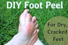 A DIY Peel for Dry, Cracked Feet With summer in full swing, learn how you can get your feet beach-ready with a homemade foot mask made from in Diy Peeling, Baby Feet Peel, Foot Peel, Homemade Face Masks, Homemade Skin Care, Homemade Moisturizer, Homemade Beauty, Peeling Maske, Health Tips