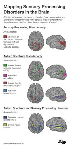 Kids with Autism, Sensory Processing Disorders Show Brain Wiring Differences -- UCSF study builds on its groundbreaking research showing children with SPD have measurable brain differences Aspergers Autism, Adhd And Autism, Children With Autism, Autism Teens, Autism Apps, Autism Parenting, Add Adhd, Sensory Diet, Sensory Issues