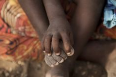 Children #WithoutShoes are exposed to hookworm which can affect growth & cognitive development.