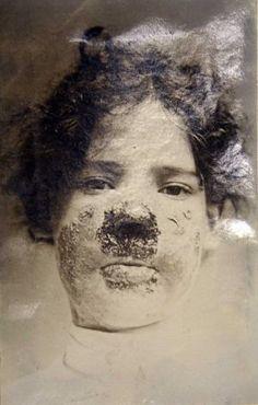 Miss Aubrawn before treatment.  (Victorian skin ailment at Wakefield Asylum)