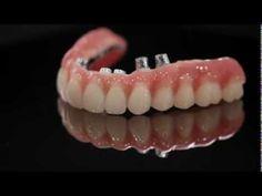 Compare os materiais mais utilizados para construir uma protese total parafusada sobre o implante dentario.