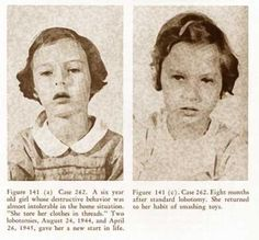 1944, 6 year old girl who was given a lobotomy due to destructive behavior.  eight months after surgery, she returned to the same pattern of behavior.