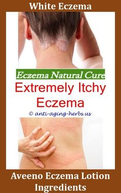 Body lotion for eczema.Coconut oil for eczema before and after.Organic coconut oil for baby eczema - Eczema Cure. Eye Eczema, Eczema Shampoo, Eczema Causes, Severe Eczema, Eczema Symptoms, Eczema Baby, Eczema Scalp, Toddler Eczema, Eczema Psoriasis
