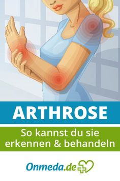 Osteoarthritis: Symptoms, Causes & Treatment- Arthrose: Symptome, Ursachen & Behandlung Osteoarthritis: wear of the joints - Arthritis, Anaerobic Exercise, Flu Like Symptoms, Agility Training, Baby Care Tips, Yoga For Flexibility, Respiratory System, Cardiovascular Disease, Muscle Groups