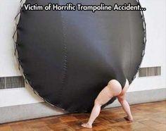 Victim of horrific trampoline accident.