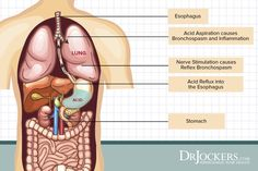It is possible to have a hiatal hernia without knowing, Learn the common symptoms and natural support strategies for this health-draining condition. Stomach Gas Relief, Stomach Acid, Hernia Symptoms, Asthma Symptoms, Hernia Exercises, Hiatus Hernia, Getting Rid Of Phlegm, Acid Reflux Cure, Human Digestive System