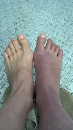 Pain of CRPS - these are not my feet, however, I do have CRPS with confirmed nerve damage in my right leg - it looks just like this.