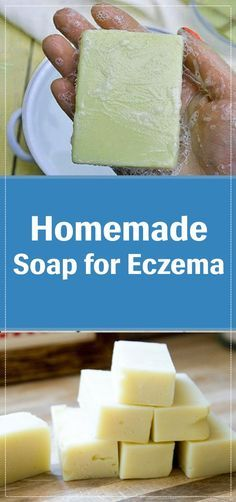 Eczema is one of the most common skin problems. This problem can occur in men and women. So, when it comes to decreasing eczema, less soap is always better. But we cannot avoid using soap in our daily Handmade Soap Recipes, Soap Making Recipes, Handmade Soaps, Diy Soaps, Handmade Pottery, Goat Milk Soap, Home Made Soap, Homemade Beauty, Skin Problems