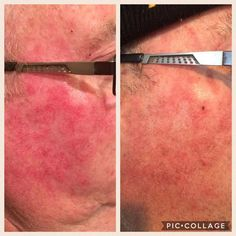 Customer Testimony: Just 1 week using the rejuveniqe oil  this man has psoriasis on his face or some sort of eczema which is working tremendously, his doctor prescribed him many creams and this oil works better!!