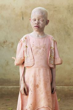 People living with albinism in Tanzania face unimaginable challenges, even the threat of death. Photographer Patrick Gries shares their stories. Intimate Photos, Model Face, We Are The World, Contemporary Photography, Tan Skin, Photo Series, African American Women, Women In History, Portrait Photography