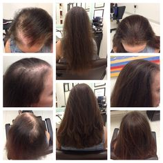 Do You Really Need A Hair Transplant? More Information : http://makeyourhairgrowfast.blogspot.com/2016/06/do-you-really-need-hair-transplant.html