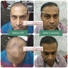 Hair transplant by renowned hair transplant surgeons at Dermaclinix. We are offered world's most advanced Bio FUE by AIIMS, ISHRS (USA) surgeons. Hair transplant in Delhi with cheapest price.