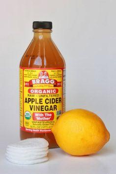 How to Naturally Lighten Sun Spots ¿Por qué esto funciona: El vinagre de manzana contiene ácidos alfa hidroxi naturales, que son conocidos para ayudar a aligerar el sol y manchas de la edad. El jugo de limón contiene ácido cítrico, que también puede ayudar a aligerar las zonas oscuras de la piel.  Lo que usted necesita: El vinagre de manzana Jugo de limón fresco Pistas de algodón Qué hacer: -Todas las noches sature un algodón con cerca de 1/4 de cucharadita de vinagre de sidra de manzana y…