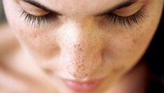 Best Skin Bleaching Cream for Dark Spots, Acne scars, Skin Brightening