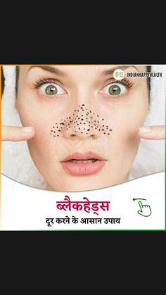 #BakingSodaForDandruff Diy Skin Care, Skin Care Tips, Baking Soda For Dandruff, Shampoo For Itchy Scalp, Beauty Skin, Diy Beauty, Beauty Hacks, Brown Spots On Skin, Good Skin Tips