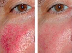 7 Remedies to fight and reduce Rosacea What Causes Rosacea, Acne Breakout, Homemade Cosmetics, Varicose Veins, Skin Problems, Health And Beauty, Conditioner, Beauty Products, Hair