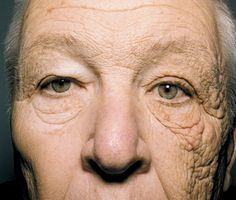 A 69-year-old former truck driver shows the effects of sun exposure on one side of his face. Photo: Jennifer Gordon/NEJM