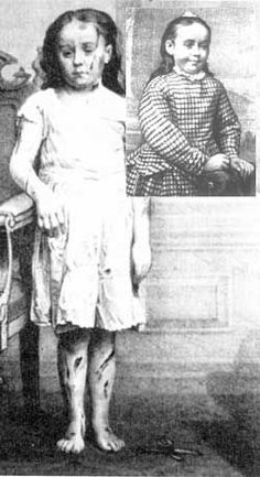 Mary Ellen Wilson (1864–1956) or sometimes Mary Ellen McCormack was an American whose case of child abuse led to the creation of the New York Society for the Prevention of Cruelty to Children. As an eight-year old, she was severely abused by her foster parents, Francis and Mary Connolly.