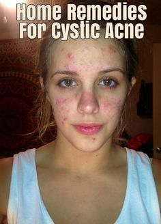 Cystic acne is a severe form of pimples, which appear in the form of large, inflamed cysts on skin. Check these Home Remedies to Get Rid of Cystic Acne.