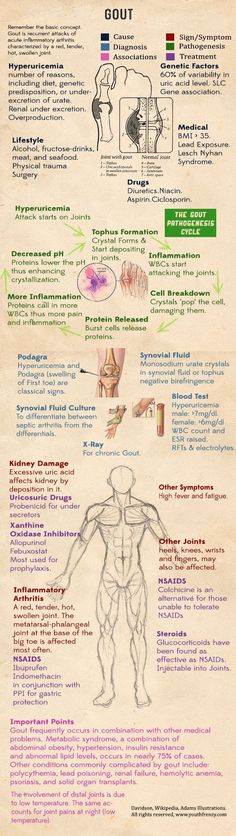 gout causes, diagnosis, treatment, drugs, prophylaxis of gout in medicine