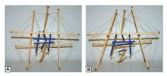 Model of how a force that is applied to a larger biotensegrity structure will be transmitted throughout the biotensegrity structure at this level (A) and also to the biotensegrity structure at the next level down (B; eg, a cell linked to its nucleus). Printed with permission from the Randel Swanson II, DO, PhD, Collection.