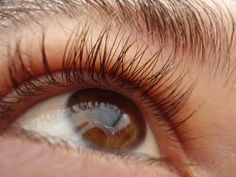 Retinitis Pigmentosa: Symptoms, Causes and Treatments. Read more on the SWEye blog www.sweye.com/blog/