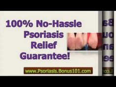 cures for psoriasis - psoriasis treatment natural - best treatment for psoriasis -  CLICK HERE for The No. 1 Itchy Scalp, Dandruff, Dry Flaky Sore Scalp, Scalp Psoriasis Book! #dandruff #scalp #psoriasis  – cures for psoriasis – psoriasis treatment natural – best treatment for psoriasis The key to curing psoriasis is this:  The root cause of psoriasis is NOT... - #Dandruff