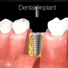 Irate Tooth Implant Before And After Dental Care dentistryworld ToothImplantRecovery Dental Implant Procedure, Teeth Implants, Dental Procedures, Dental Surgery, Dental Implants, Implant Dentistry, Dental World, Dental Life, Dental Art