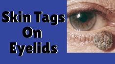 Eyelids Skin Tags & Skin Tags Around Eyes:  How To Get Rid Of Skin Tags ... Skin Care Regimen, Skin Care Tips, Skin Tag On Eyelid, Oily Skin Treatment, Skin Tag Removal, Happy Skin, Homemade Skin Care, How To Get Rid, Good Skin