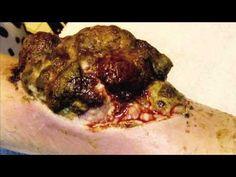 (warning...icky images) Black Salve Info, Internal Cancers