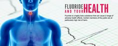 Fluoride toxicity is characterized by a variety of signs and symptoms. Poisoning most commonly occurs following ingestion (accidental or intentional) of fluoride-containing products. Symptom onset usually occurs within minutes of exposure.